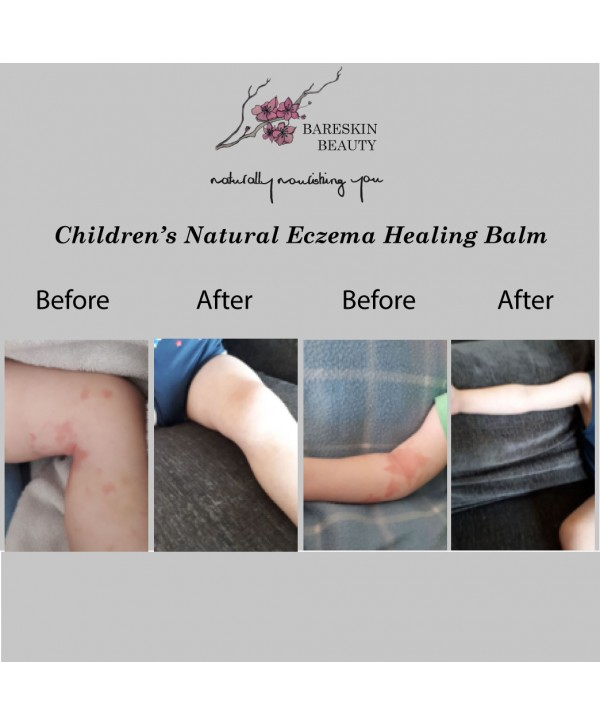 Children's Natural Eczema Healing Balm